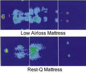 Pressure Redistribution Mattress, Pressure Relief Mattress, Mattress Comparison