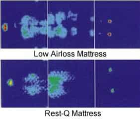 Pressure Redistribution Mattress, Pressure Relief Mattress, Mattress Comparison